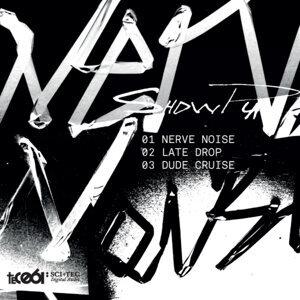 Nerve Noise