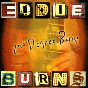 2nd Degree Burns
