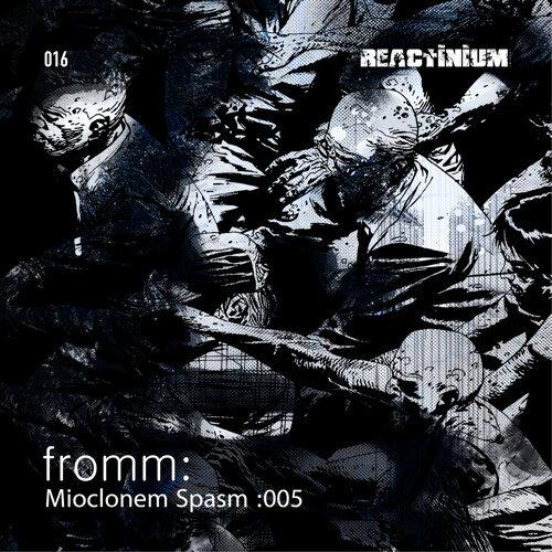 Mioclonem Spasm: 005